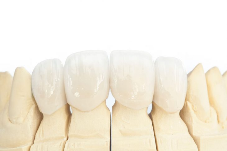Are Porcelain Veneers Safe